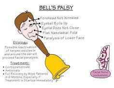 how to massage bell's palsy Nursing School Notes, Nursing Career, Nursing Tips, Nursing Schools, Nursing Process, Nclex, Med Surg Nursing, Ob Nursing, Funny Nursing