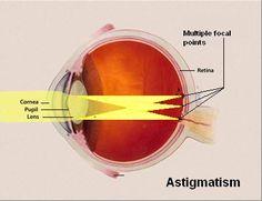Eye Astigmatism | Astigmatic | Astigmatism vision | Astigmatism ...