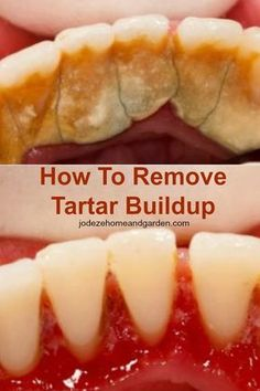 How To Remove Tartar Buildup. Of course, the best way to remove tartar buildup is paying a visit to your dentist, but there are other ways to remove tartar buildup from your teeth at home. Teeth Health, Oral Health, Dental Health, Dental Care, Dental Hygiene, Health Diet, Healthy Teeth, Gum Health, Beauty Secrets