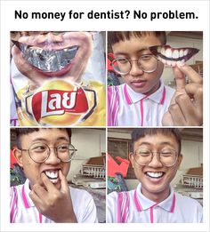 No problem for hurting your teeth by the dentist.