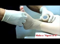Dr. Prant's One-Minute Videos:  How to strap or tape your foot and ankle.http://youtu.be/0lxS3BllwMQ