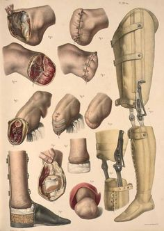 spectacularuniverse: An illustration demonstrating amputation of the foot and leg with examples of prostheses. By Nicolas Henri Jacob from 'Traité complet de l'anatomie de l'homme' by Marc Jean Bourgery, 1831.