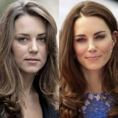 Pin by Beach Glenda on Princess Kate in 2020 Cabelo Kate Middleton, Kate Middleton Makeup, Looks Kate Middleton, Kate Middleton Outfits, Kate Middleton Wedding, Princess Kate, Princess Katherine, Botox Before And After, Celebs Without Makeup