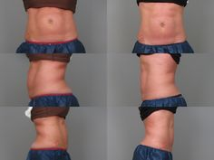 Look at our patient's CoolSculpting results after 1 month! No downtime involved. These pictures are proof that it really works!