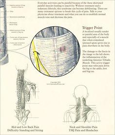 terapi stroke karcsúsító