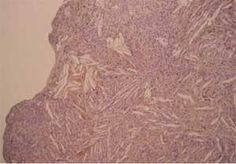 Observations cliniques et anatomo-pathologiques de lésions buccales  http://ancien.odonto.univ-rennes1.fr/old_site/anath/obs_ana_path/premcha/s1ss4.html
