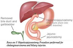 Roux-en-Y Hepaticojejunostomy Procedure performed for cholangiocarcinoma and biliary injuries. Bile duct drains into small intestine