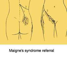 Maignes syndrome is low back pain that radiates into the buttock and upper leg. I think I have this.