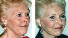 Total Wrinkle Miracle - Beauty & Skin 101