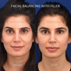 Facial fillers before and after photos cheek fillers under eye filler upper eyelid filler Cheek Fillers, Facial Fillers, Eyelid Lift, Brow Lift, Face Injections, Liquid Facelift, Under Eye Fillers, Tear Trough, Fat Transfer