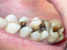 Một hàm răng đẹp không chỉ đảm bảo chức năng ăn nhai tốt mà còn phải thể hiện tính thẩm mỹ khi giao tiếp. Trám răng được coi là một phương pháp đơn giản nhưng rất hiệu quả trong việc khắc phục những vấn đề của răng miệng cũng như tạo nên vẻ đẹp thẩm mỹ cho hàm răng. Vậy khi nào nên đi trám răng?