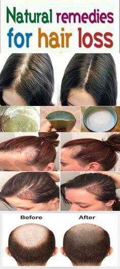 How to control hair fall & stop hair fall - home remedies for hair loss
