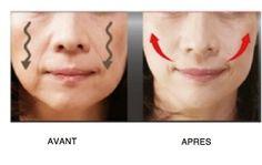 4 astuces pour rehausser les joues affaissées - Améliore ta Santé