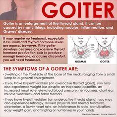 Infographic on goiter (enlarged thyroid gland) Thyroid Disease Symptoms, Thyroid Issues, Thyroid Hormone, Thyroid Problems, Thyroid Health, Hypothyroidism, Enlarged Thyroid Symptoms, Symptoms Check, Thyroid Nodules