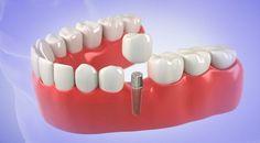 Dental Implants Houston - URBN Dental offers Affordable Dental Implant Surgery for missing teeth. Find our Dental Implant Center Near me. Dental Implants Near Me, Implant Dentist, Dental Implant Surgery, Teeth Implants, Misaligned Teeth, Affordable Dental Implants, Dentist Near Me, Restorative Dentistry, Missing Teeth