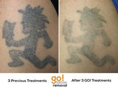 After 3 laser tattoo removal treatments on this piece from for Saline tattoo removal