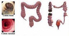 Cum să-ți cureți colonul de toxine în 7 zile utilizând 3 ingrediente simple – Rețetă! - Secretele.com Health And Beauty, Health And Wellness, Colon Cancer, Good To Know, Healthy Life, Natural Remedies, Nature, Mai, Romania