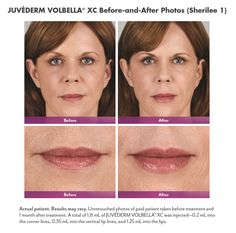Juvederm Volbella® XC is one of the most recent additions to the collection—tailored to add subtle volume to the lips and smooth the appearance of vertical lip lines.