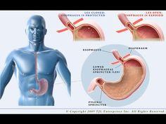 Heartburn, Acid Reflux (GERD) : How To Cure Heartburn and Acid Reflux (GERD) - YouTube