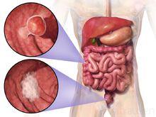 Colorectal cancer - Wikipedia