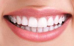 DIY : blanchiment naturel des dents sans passer par le dentiste