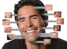 Our practice offers a wide variety of options to combat aging and create a naturally, rejuvenated appearance. #Male #Botox