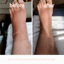 Reflexology Lymph Drainage RLD is a gentle, non invasive and effective treatment Spa Massage, Massage Therapy, Lymphatic Drainage Massage, Body Fluid, Lymph Nodes, Water Retention, Lymphatic System, Massage Techniques, Wellness Center