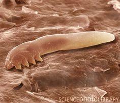 """Eyelash mite. Coloured scanning electron micrograph (SEM) of an eyelash, or follicle, mite (Demodex folliculorum), a harmless parasite which lives inside human hair follicles."" - eeew"