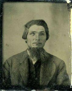 tuesday-johnson:    ca. 1860-1900, [tintype portrait of a gentleman missing one eye]  via Ebay Auctions