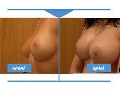 Augmentation mammaire en Tunisie pour poitrine ferme et volumineuse. Découvrez les diverses procédures avec clinique tunisie au meilleur tarif.
