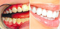 The whiteness and health of your teeth depend not only on basic care but also on the food you eat. You can see a dentist every so often and use popular whitening products but if you love certain … Teeth Health, Healthy Teeth, Dental Teeth, Perfect Smile, Physical Pain, Pressure Points, Whitening, Healthy Recipes, Healthy Food