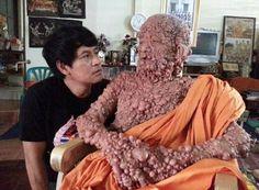Thai monk with Von Recklinghausen disease