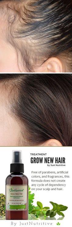 Grow New Hair Treatment, Revives sleeping follicles and prom.- Grow New Hair Treatment, Revives sleeping follicles and promote healthy hair growth - Natural Hair Styles, Long Hair Styles, Hair Remedies, Acne Remedies, Natural Remedies, Shaved Hair, Tips Belleza, Hair Care Tips, Hair Health