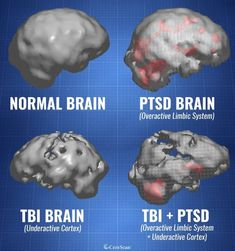 Our imaging could lead to more effective treatments for PTSD and Traumatic Brain Injury among others. Brain Injury Recovery, Brain Injury Awareness, Ptsd Awareness, Ptsd Recovery, Tramatic Brain Injury, Injury Quotes, Post Concussion Syndrome, Brain Facts, Brain Anatomy