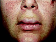 prednisolone identifaction