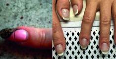 Crepe trasversali unghie: gli errori più comuni sulla ricostruzione unghie