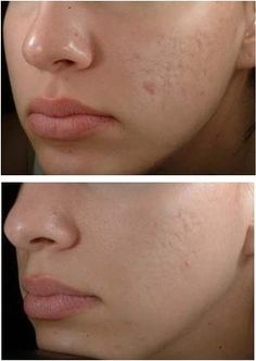 How to Get Rid of Acne Scars Overnight |Fitness Training