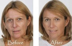 This woman used the product Luminesce by Jeunesse Global.  Luminesce is used daily to achieve long term results.  watch the short video and click on order product.  The Luminesce skin care line is listed along with instantly Ageless.  Available in over 100 countries.http://LookAtHerEyes.com/warm/?u=2664