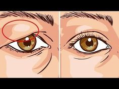 How To Treat Droopy Eyelids Naturally. The Results Are Amazing! How To Treat Droopy Eyelids Naturally. The Results Are Amazing! Drooping Eyelids, Droopy Eyes, Droopy Eye Makeup, Saggy Eyelids, Round Face Makeup, Hooded Eyelids, Makeup Eyes, Beauty Skin, Health And Beauty