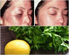 Débarrassez-vous des allergies de soleil, l'acne, les taches brunes et de rousseur avec les feuilles de cette plante !!!Santé SOS  Page 3 Allergies, Honeydew, Facial, Health Fitness, Fruit, Beauty, Whiten Skin, Dark Stains, Leaves