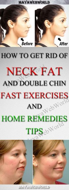 How To Get Rid Of Neck Fat And Double Chin Fast- Exercises And Home Remedies Tips – MayaWebWorld