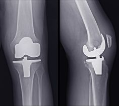 #KneeJoint #KneeJointReplacement #HipReplacement  Knee Joint Replacement In Delhi  See More:- http://kneejointreplacement.in/