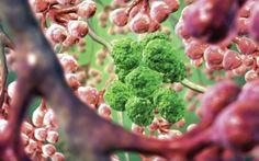 ΡΟΔΟΣυλλέκτης: «Νέο» όπλο στη μάχη κατά του καρκίνου