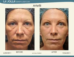 was treated with Artefill at La Jolla Cosmetic Laser Clinic.Patient was treated with Artefill at La Jolla Cosmetic Laser Clinic. Botox Injection Sites, Botox Injections, Under Eye Fillers, Under Eye Makeup, Hbo Documentaries, Laser Clinics, Eye Serum, Plastic Surgery, Skin Care Tips