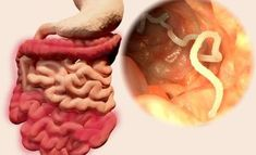 7 Herbs That Cleanse Intestinal Parasites Fast - How To Get Rid of Parasites Gut Health, Health And Wellness, Health Tips, Health Articles, Home Remedies, Natural Remedies, Parasite Cleanse, Intestinal Parasites, Health Fitness