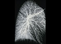 An X-ray showing blood vessels inside a normal lung.    Credit: Wellcome Photo Library, Wellcome Images.