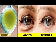 If you want to Remove Wrinkles Under The Eyes, as well as other eye problems, such as dark circles, crow's feet, and puffy eyes. Beauty Care, Beauty Skin, Beauty Secrets, Beauty Hacks, Eye Tricks, Neck Wrinkles, Facial Tips, Eyes Problems, Eye Treatment