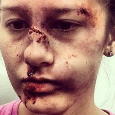 Special effects makeup, bruising, broken nose, blood, black eye makeup by jacqueline priem