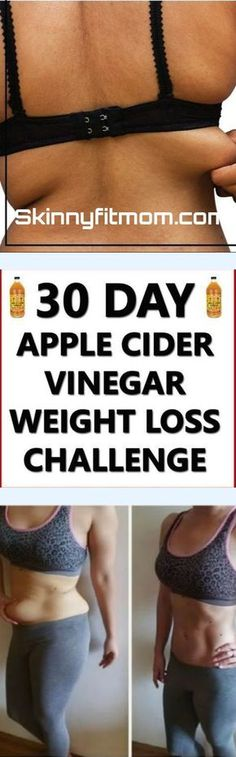 10 benefits of Apple Cider Vinegar for weight loss in 30 days http://healthyquickly.com