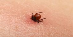 Lyme Disease: 4 Symptoms To Watch For As Tick Epidemic Spreads